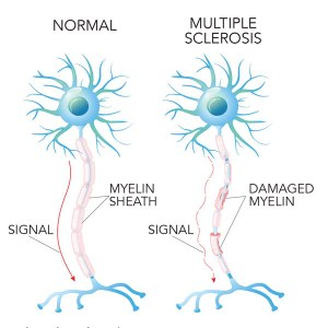 ms-nerve-cells